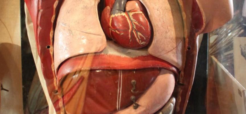 Nu kan du betale restskat med dine organer
