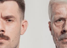 Se den vanvittige forvandling: Mand gik fra 31 til 67 år på kun 36 år!
